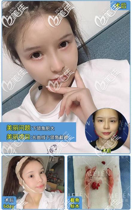 广州美恩徐威强教授下颌角改脸型案例