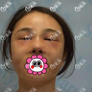 隆鼻术后肿的厉害