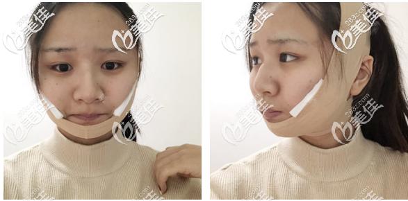 广州美恩徐威强下颌角改脸型7天自拍