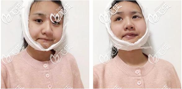 广州美恩徐威强磨骨改脸型术后三天效果图