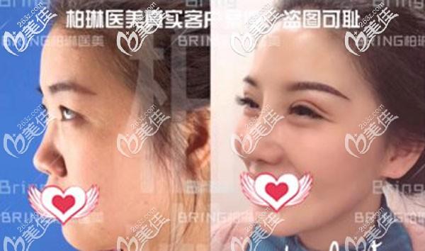 桂林柏琳医疗美容诊所董小飞术后照片1