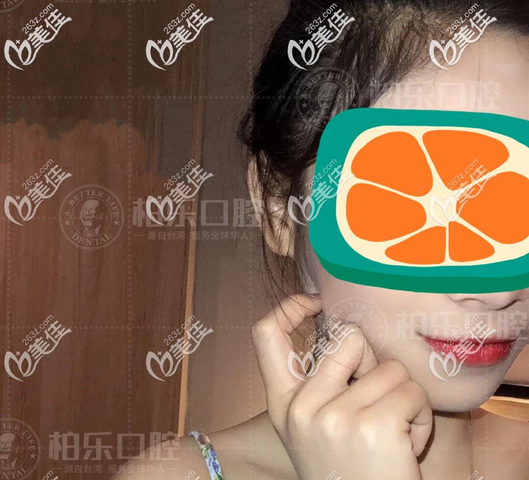 晒下偶在南宁市私立口腔做的虎牙不拔牙矫正前后脸型效果图,觉得这家口腔收费还算正规