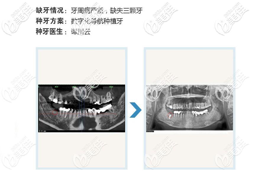柏乐口腔种植牙案例