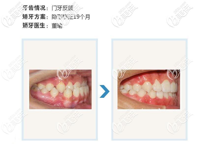 门牙反颌矫正案例