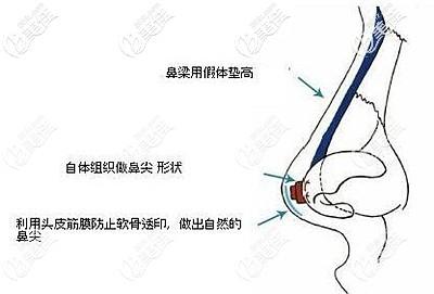在鼻尖垫筋膜的作用