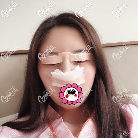 眼鼻整形术后即刻