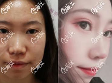 济南嘉丽医疗美容诊所陈朋术后照片1