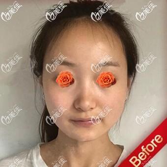 沈阳和平元辰医疗美容门诊部杨晓月术前照片1