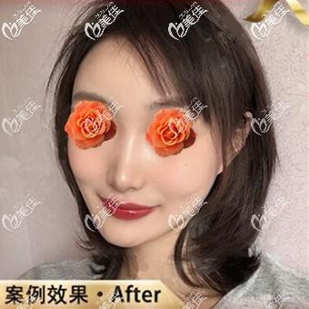 沈阳和平元辰医疗美容门诊部杨晓月术后照片1