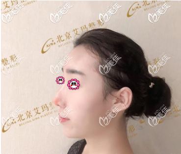 北京艾玛医疗美容诊所李方奇术前照片1