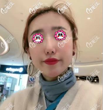 我找北京艾玛李方奇做鼻部注射物取出30天了