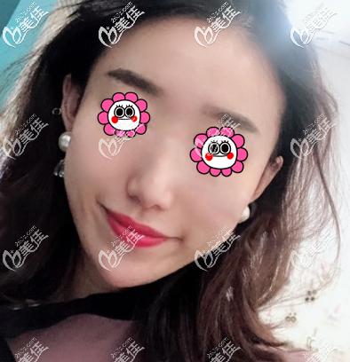 北京艾玛李方奇做注射物取出怎么样?我做鼻部注射物取出效果价格参考