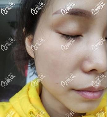 重庆骑士医院疤痕修复科张园园术后照片1
