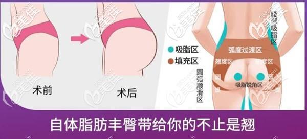 自体脂肪丰胸前后对比照片