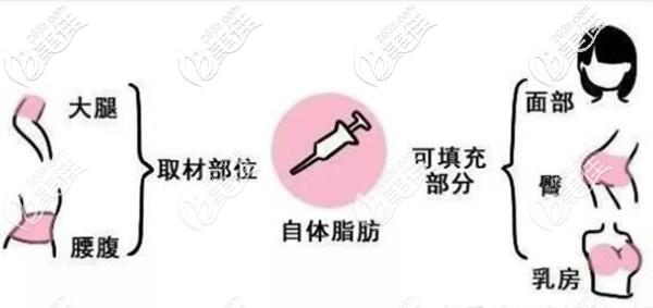 大腿和腰腹的脂肪可以填充到臀部胸部和面部