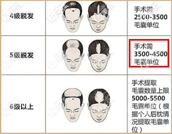 5级脱发植发4000单位够么