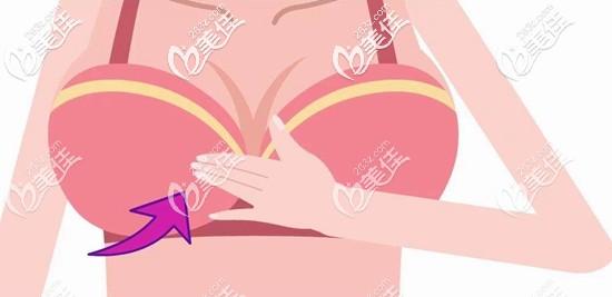 人工韧带乳房提升术多少钱?