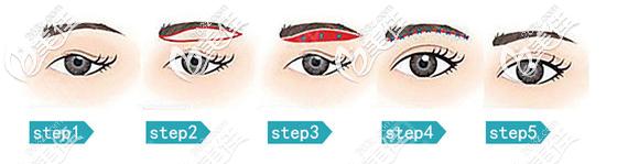假体垫眉弓手术流程