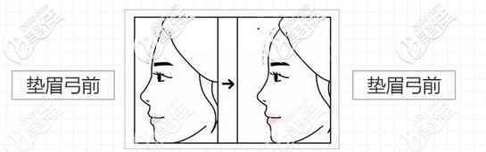 假体垫眉弓术前术后的样子