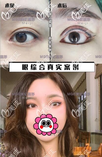 切开双眼皮+开外眼角前后对比案例