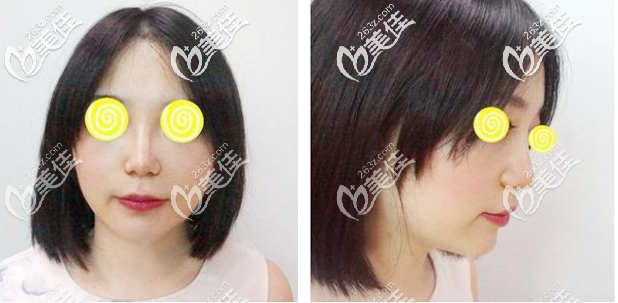 在广州荔湾区人民医院取晚鼻子奥美定后直接做了假体隆鼻