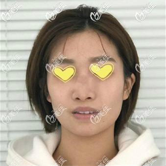 做美国舒铂鼻术前照片