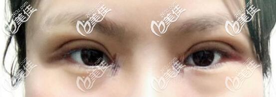开眼角术后有很大几率会留下疤痕