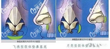 假体垫鼻基底的位置