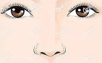 假体垫鼻基底鼻翼变宽的原因
