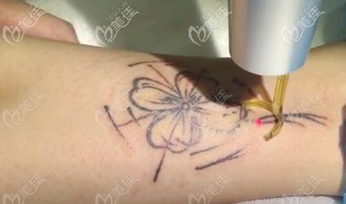 造成皮秒洗纹身多次不掉的原因