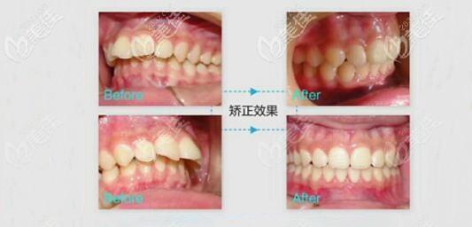 龅牙矫正前后对比图