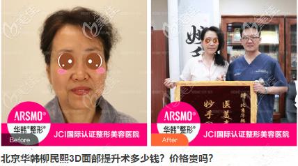 北京华韩柳民熙3D面部提升术真人案例