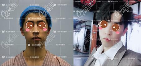 北京东方和谐冯斌自体脂肪面部填充真人案例