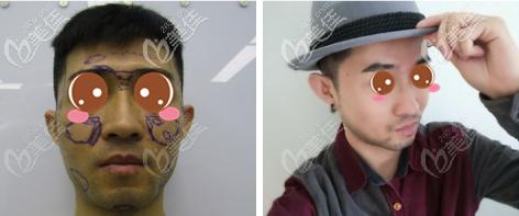 北京润美玉之光SVF脂肪胶填充全脸真人案例