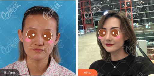 北京美莱鼻综合真人案例
