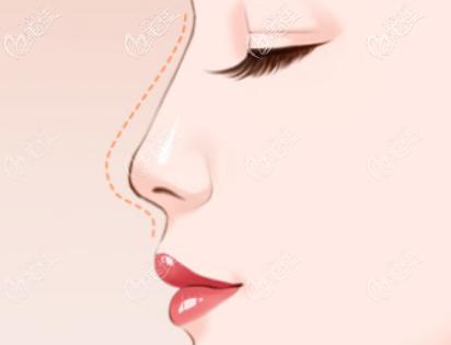 肋骨隆鼻示意图