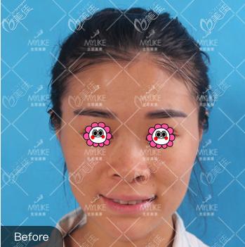 我做肋骨隆鼻术前