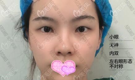 长沙华韩华美医疗美容医院余春国术前照片1