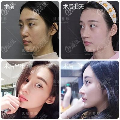 北京沃尔刘彦军肋软骨鼻综合隆鼻案例