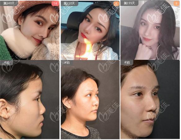 北京柏丽李劲良做的鼻子和鼻子修复案例