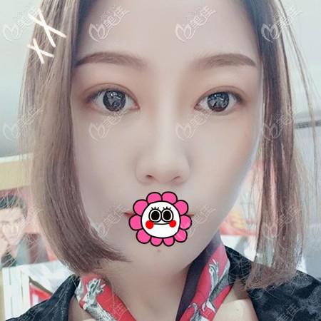 杭州时光范眉清双眼皮案例:改善单眼皮肿泡眼后感觉充满活力和朝气