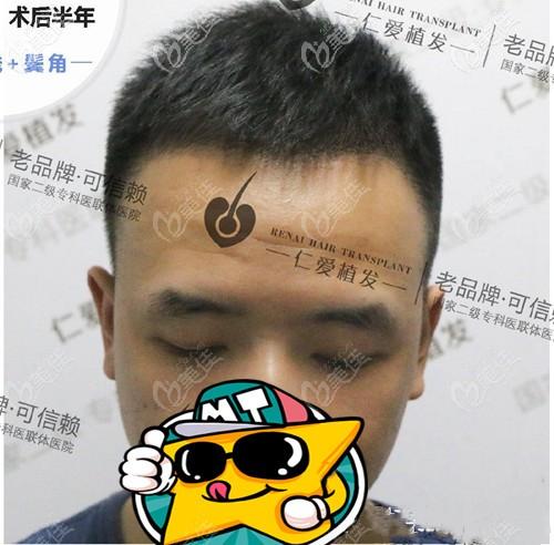 你们猜我在武汉仁爱做的m发际线植发一次多少钱?顺便展示下种植1000个毛囊面积图片