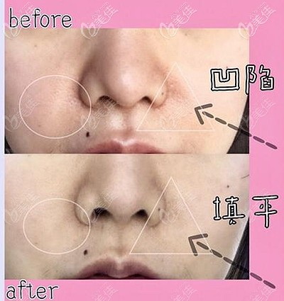 玻尿酸填充鼻基底后的效果对比