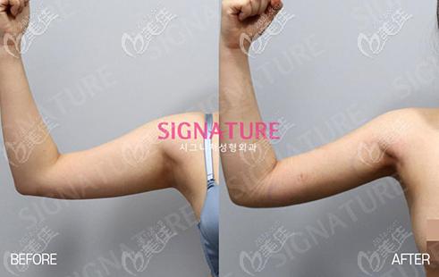 留学生在韩国SIGNATURE整形外科做手臂吸脂后自我感觉良好