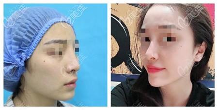 济南韩氏王召东医生的鼻修复案例