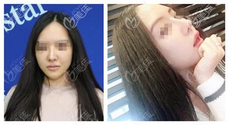 济南艺星杨季涛做鼻子的案例