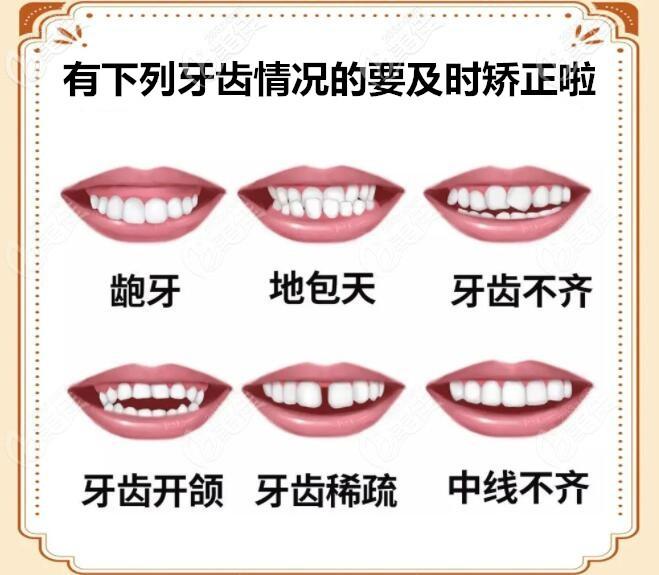 各种牙齿畸形图片
