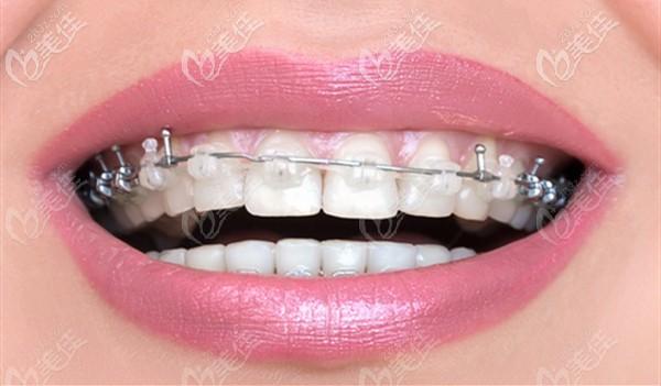 牙齿矫正的好处