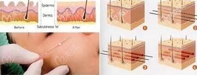埋线失败修复手术