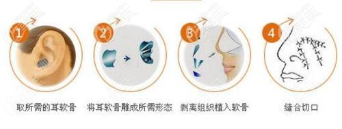 隆鼻失败修复的耳软骨可以二次使用